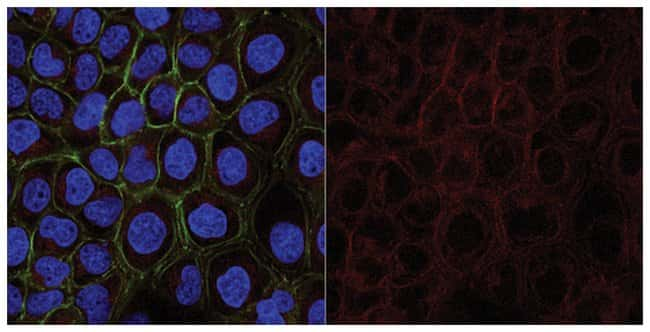 MilliporeSigmaMouse anti-Cytokeratin 5,6, Clone: D5/16B4, Alexa Fluor 647,