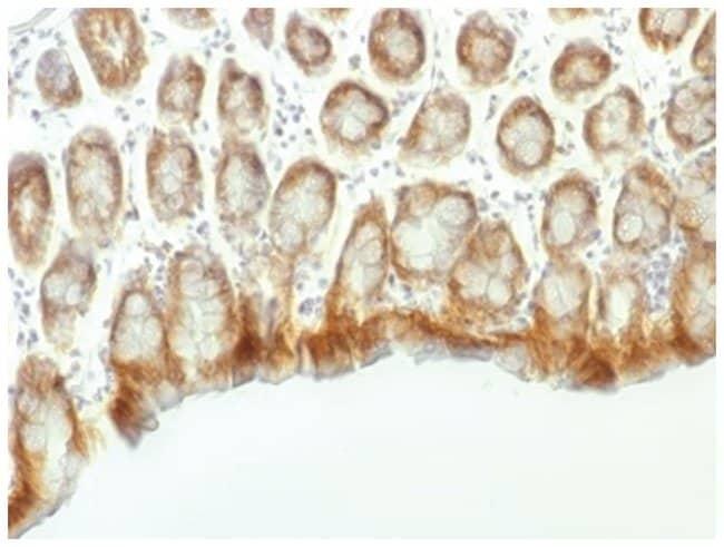 beta-Catenin Mouse anti-Human, Mouse, Rat, Clone: CTNNB1/1507, Novus Biologicals::