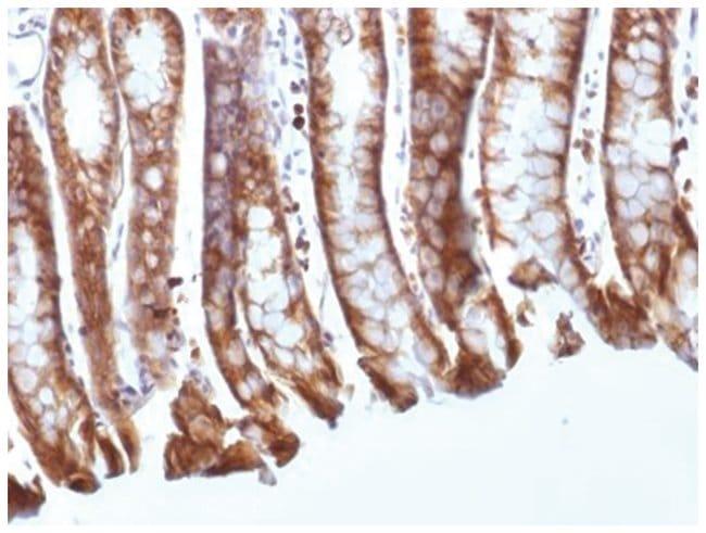 beta-Catenin Mouse anti-Human, Mouse, Rat, Clone: CTNNB1/1508, Novus Biologicals::