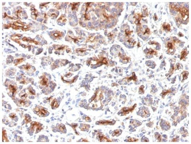 CFTR Mouse anti-Human, Mouse, Clone: SPM176, Novus Biologicals::