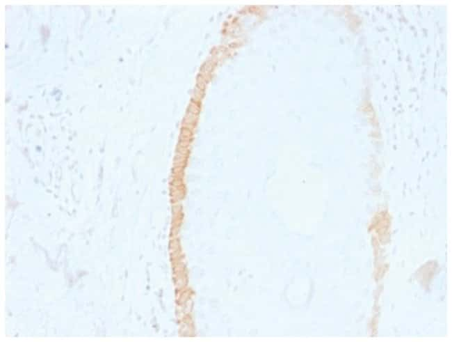 Cytokeratin 15 Mouse anti-Bovine, Human, Rat, Clone: SPM190, Novus Biologicals::