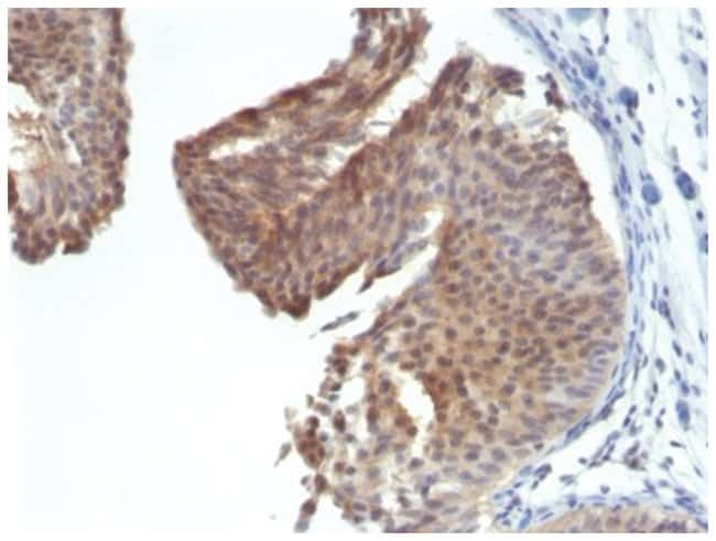 Cytokeratin 6a Mouse anti-Human, Mouse, Clone: KRT6/1702- Azide and BSA