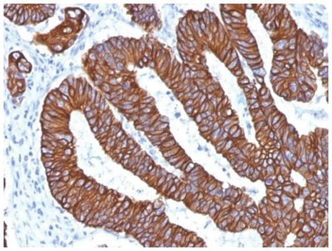 Cytokeratin 8/18 Mouse anti-Human, Clone: KRT8.18/1346- Azide and BSA Free,