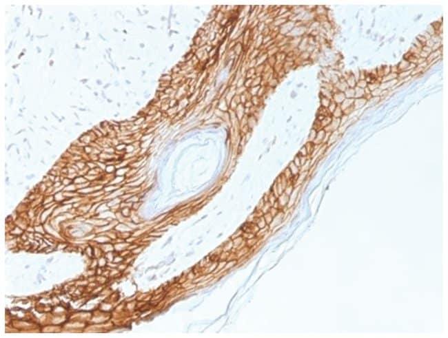 E-Cadherin Mouse anti-Human, Mouse, Rat, Clone: 4A2, Novus Biologicals::