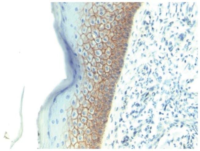E-Cadherin Mouse anti-Human, Clone: SPM381- Azide and BSA Free, Novus Biologicals::