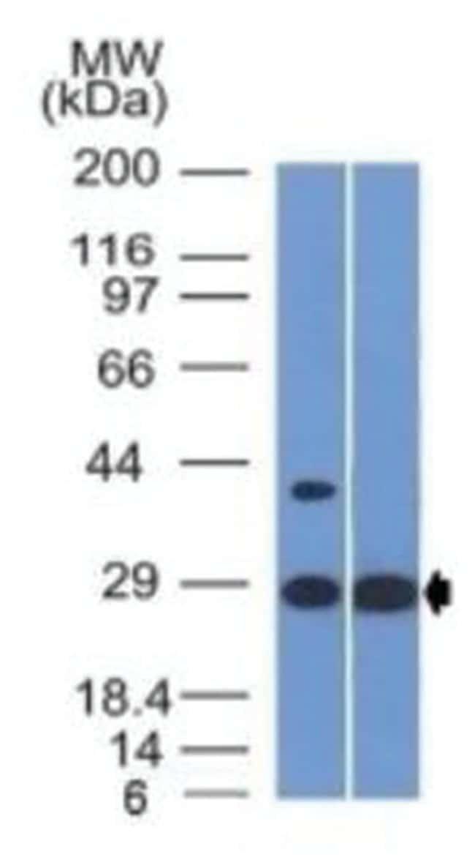 Erythropoietin Mouse anti-Human, Clone: EPO/1368- Azide and BSA Free, Novus