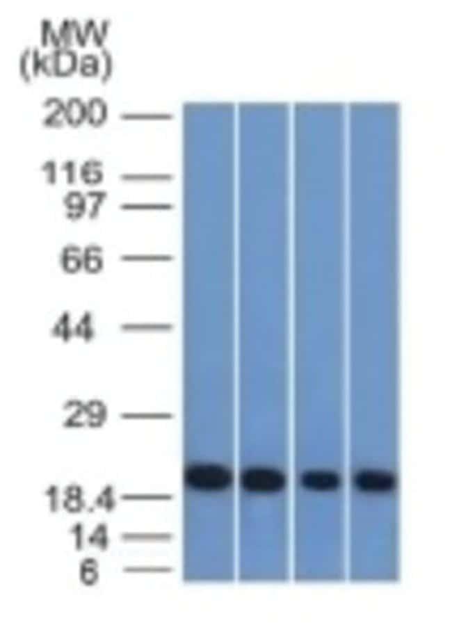 Ferritin Light Chain Mouse anti-Human, Clone: FTL/1386, Novus Biologicals::