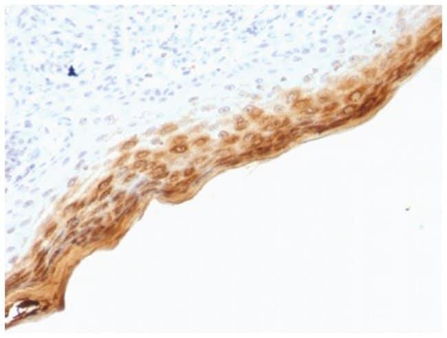 Filaggrin Mouse anti-Human, Clone: SPM181- Azide and BSA Free, Novus Biologicals::