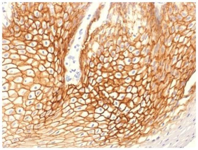 gamma Catenin Mouse anti-Human, Clone: CTNG/1664- Azide and BSA Free, Novus