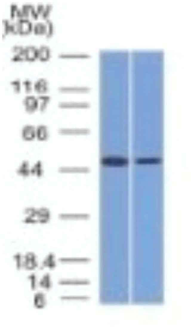HNF-3 alpha/FoxA1 Mouse anti-Human, Rat (Negative), Clone: FOXA1/1512-