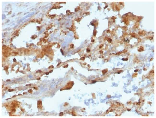 CD11c Mouse anti-Human, Clone: ITGAX/1243- Azide and BSA Free, Novus Biologicals::