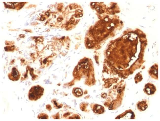 MUC-1 Mouse anti-Human, Clone: rMUC1/960, Novus Biologicals::