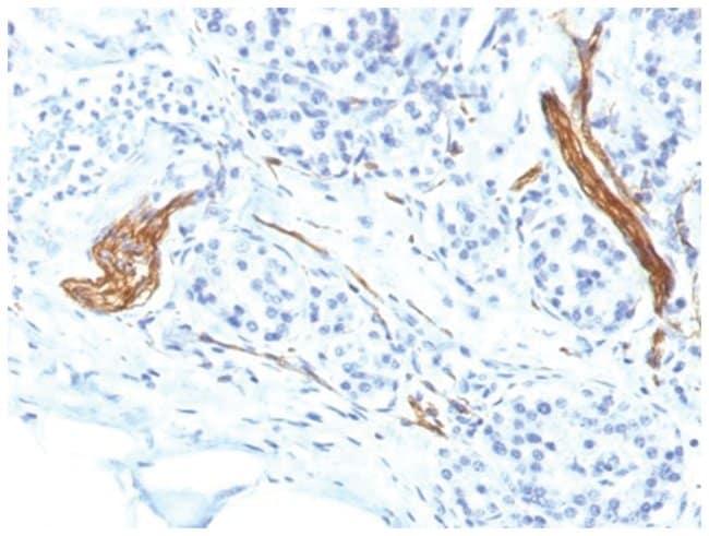 NCAM-1/CD56 Mouse anti-Human, Clone: NCAM1/1496- Azide and BSA Free, Novus