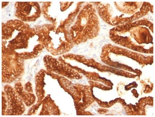 Prostatic Acid Phosphatase/ACPP Mouse anti-Human, Clone: SPM312- Azide
