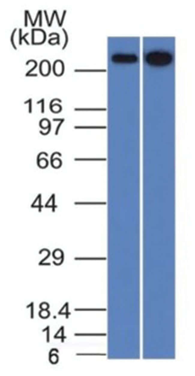 Spectrin beta 3 Mouse anti-Human, Clone: SPTBN2/1582, Novus Biologicals::