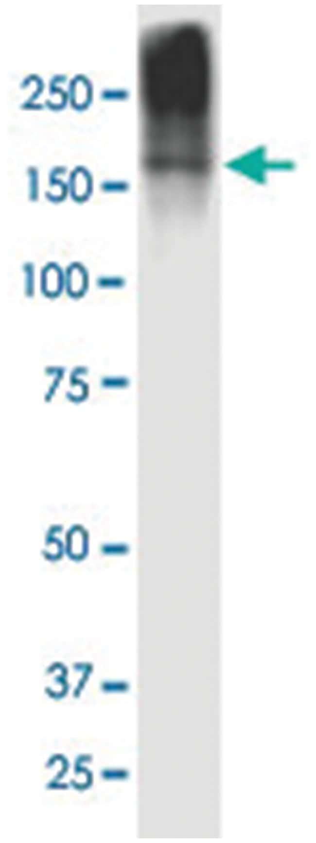 CPS1 (817-836) Mouse anti-Human, Clone: 5F5, Abnova 100μg; Unlabeled:Antibodies