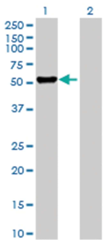 DFNA5 Mouse anti-Human, Purified MaxPab Polyclonal , Abnova 50μg; Unlabeled:Antibodies