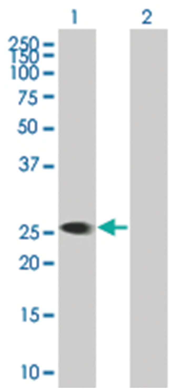 KYNU Mouse anti-Human, MaxPab Polyclonal , Abnova 50μL; Unlabeled:Antibodies