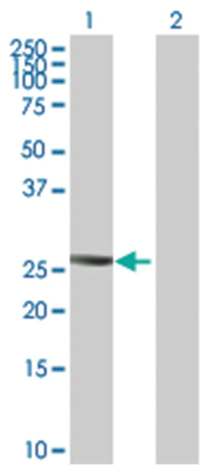 PTTG2 Mouse anti-Human, Purified MaxPab Polyclonal , Abnova 50μg; Unlabeled:Antibodies