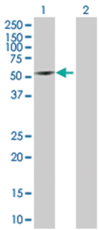 tetratricopeptide repeat domain 8, Mouse, Polyclonal Antibody, Abnova 50µL;