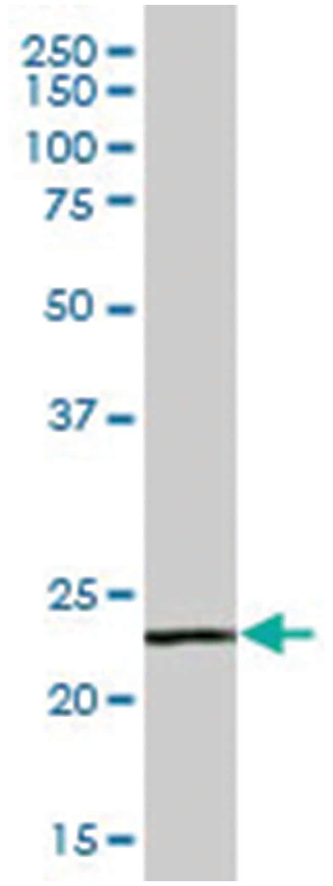signal-regulatory protein delta, Mouse, Polyclonal Antibody, Abnova 50µL;