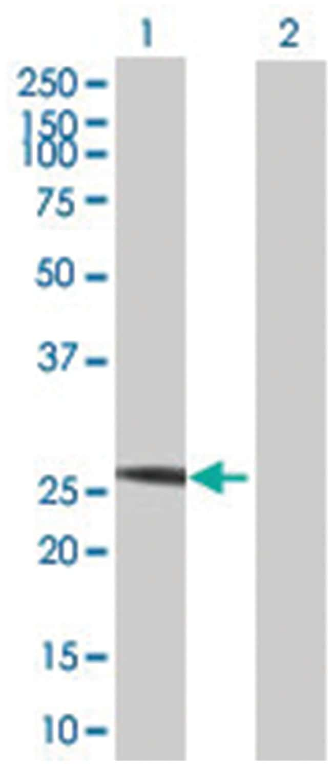 proteasome (prosome, macropain) subunit, alpha type, 8 (B01), Mouse anti-Human,