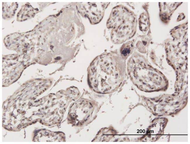 zinc finger protein 584, Mouse, Polyclonal Antibody, Abnova 50µL;