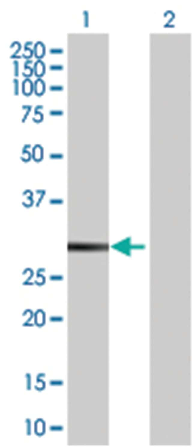 mitogen-activated protein kinase 15 (B02), Mouse anti-Human, Polyclonal