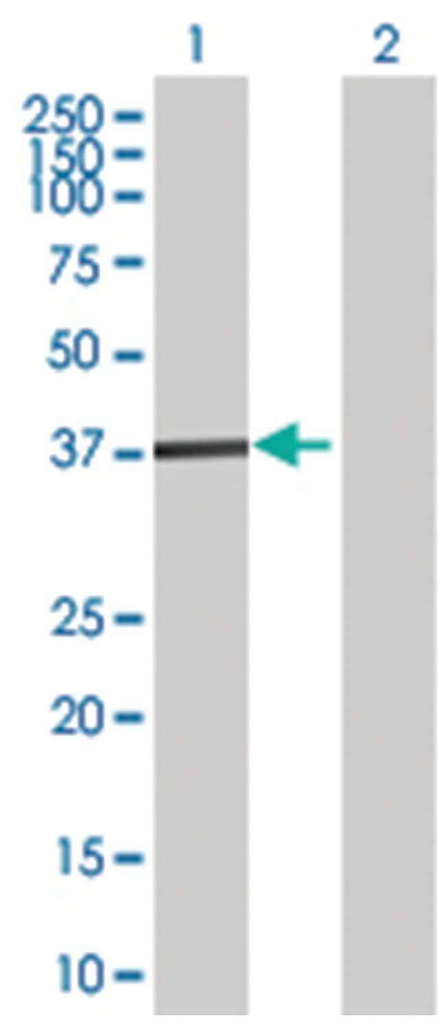 zinc finger protein 396, Mouse, Polyclonal Antibody, Abnova 50µL;