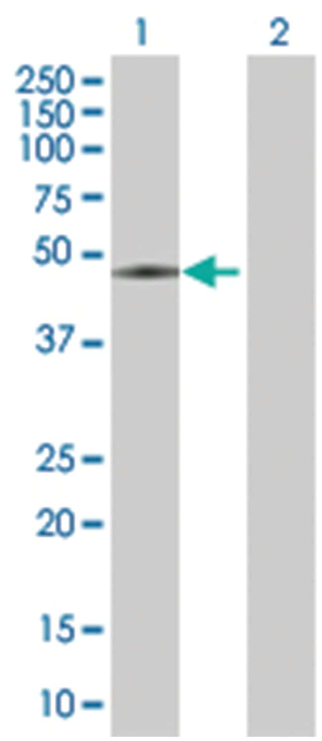 angiopoietin-like 5, Mouse, Polyclonal Antibody, Abnova 50µL; Unlabeled
