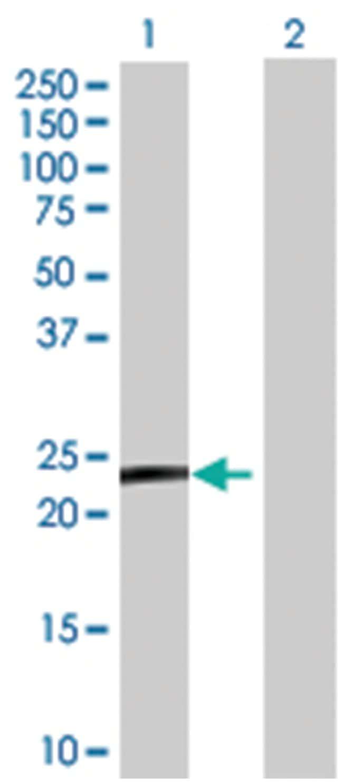 LY6/PLAUR domain containing 5 (B02), Mouse anti-Human, Polyclonal Antibody,