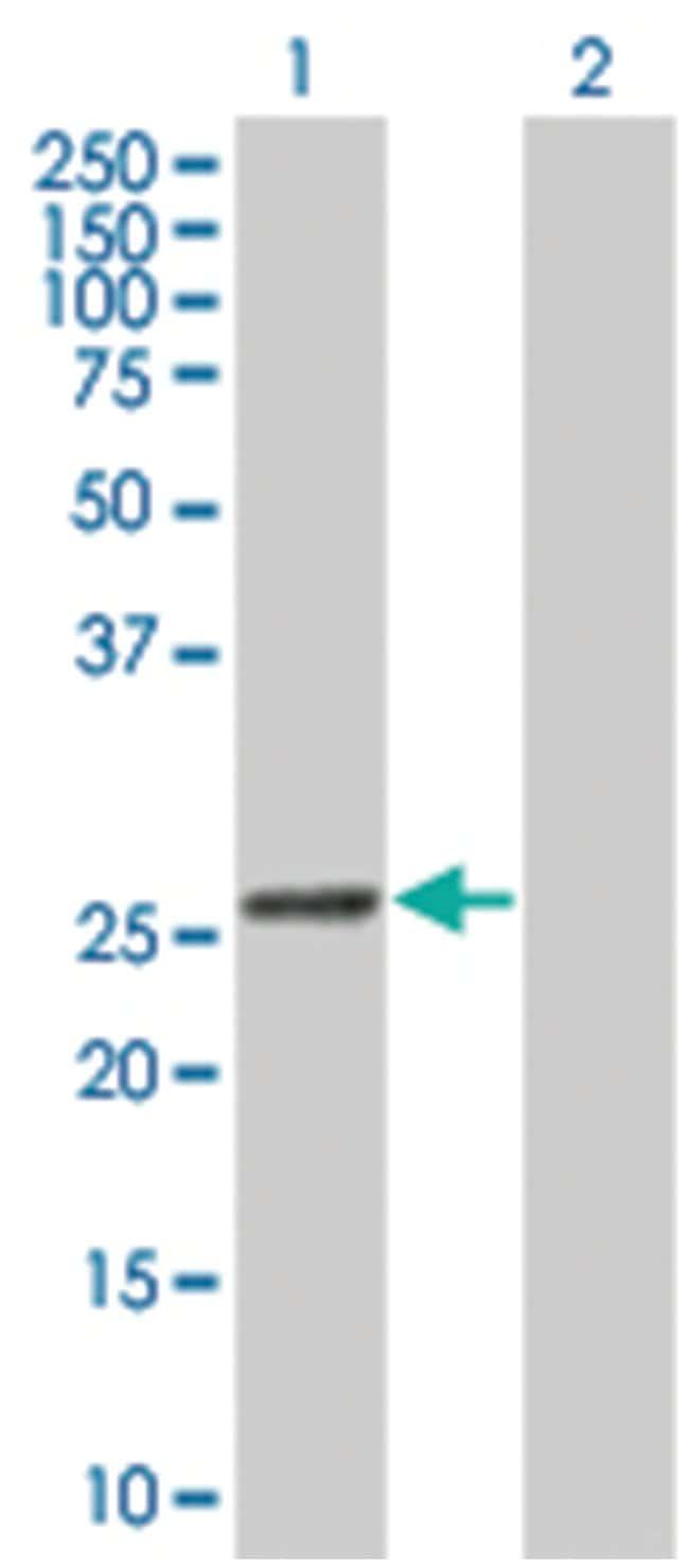 glutathione S-transferase kappa 1, Mouse, Polyclonal Antibody, Abnova 50µL;