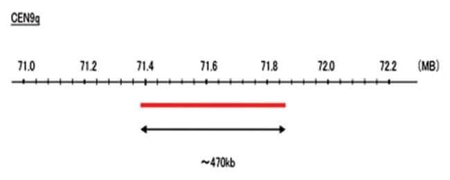 Abnova CEN9q (DEAC) FISH Probe 1 Set:Life Sciences