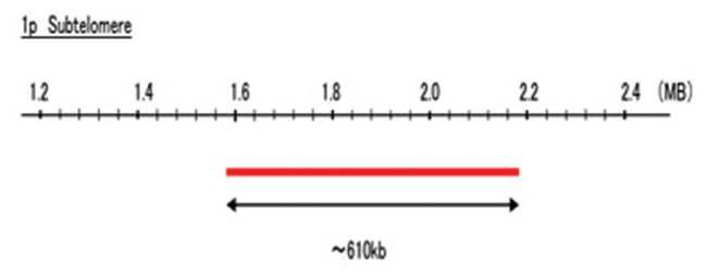 Abnova 1p Subtelomere (Texas Red) FISH Probe 1 Set:Life Sciences