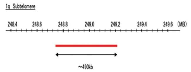Abnova 1q Subtelomere (FITC) FISH Probe 1 Set:Life Sciences