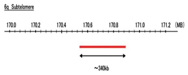 Abnova 6q Subtelomere (Texas Red) FISH Probe 1 Set:Life Sciences