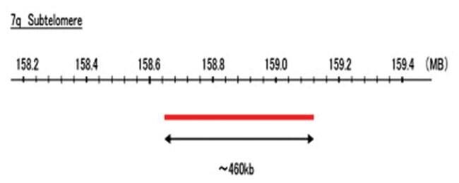 Abnova 7q Subtelomere (Texas Red) FISH Probe 1 Set:Life Sciences