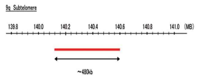 Abnova 9q Subtelomere (R6G) FISH Probe 1 Set:Life Sciences
