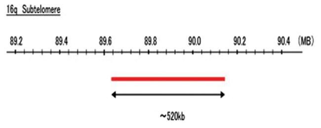 Abnova 16q Subtelomere (R6G) FISH Probe 1 Set:Life Sciences