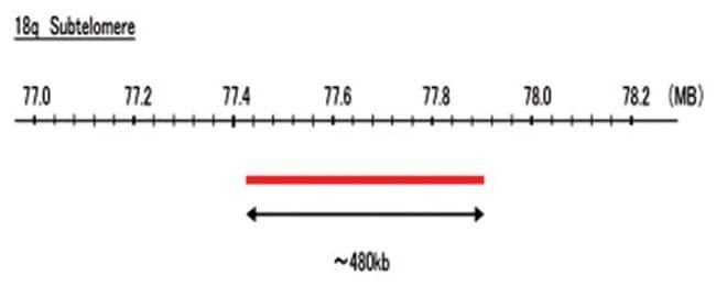 Abnova 18q Subtelomere (Texas Red) FISH Probe 1 Set:Life Sciences