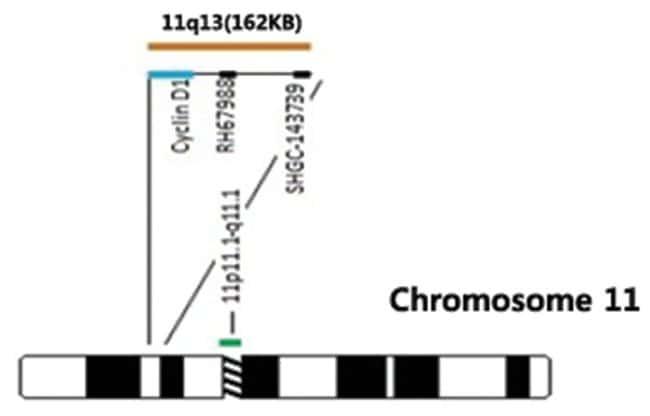Abnova CCND1/CEN11q (Orange/Green) FISH Probe CCND1/CEN11q FISH Probe:Life