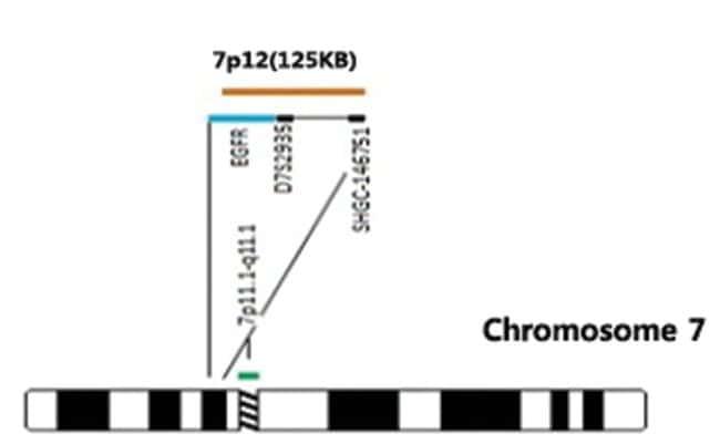 Abnova EGFR/CEN7p (Orange/Green) FISH Probe EGFR/CEN7p FISH Probe:Life