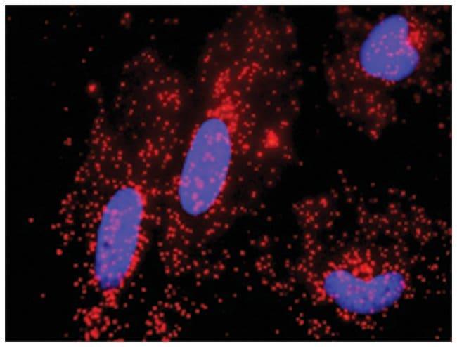 anti-JUP, CTNNB1 Protein Protein Interaction Antibody Pair, Abnova 1 Set,