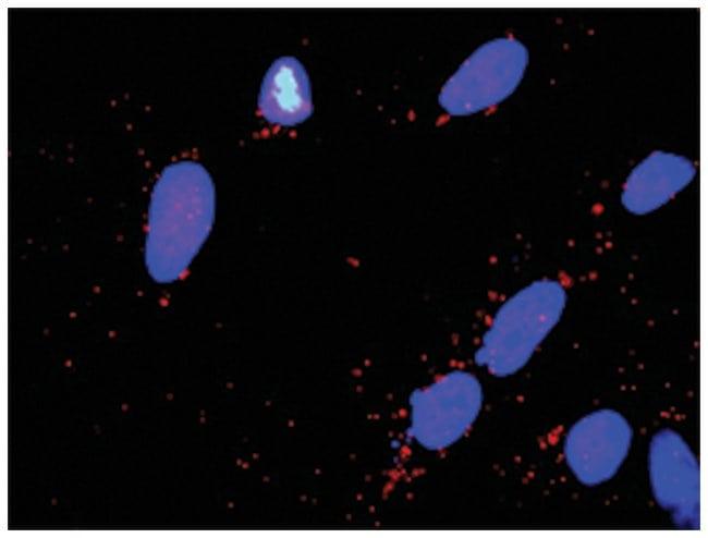 anti-PARK2, DLG1 Protein Protein Interaction Antibody Pair, Abnova 1 set,