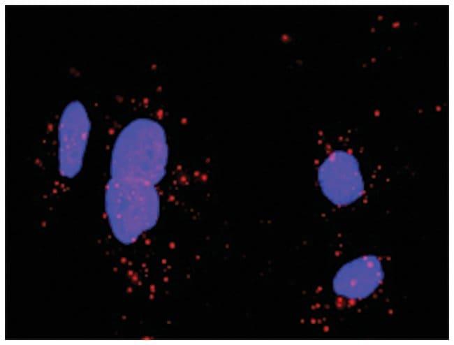 anti-FGFR1, CDH1 Protein Protein Interaction Antibody Pair, Abnova 1 Set,
