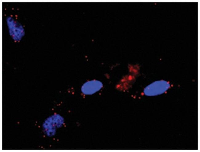 anti-RALGDS, HRAS Protein Protein Interaction Antibody Pair, Abnova 1 set,