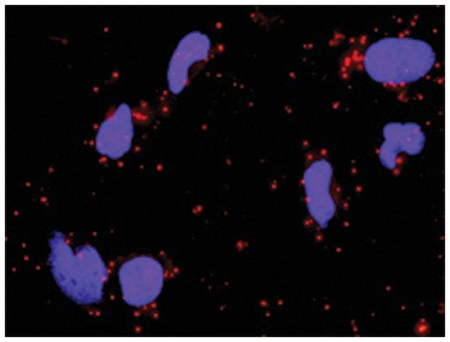 anti-DVL1, CSNK2A1 Protein Protein Interaction Antibody Pair, Abnova 1
