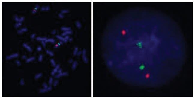 Abnova PIK3CG/CEN7q (Texas Red/FITC) FISH Probe PIK3CG/CEN7q FISH Probe:Life