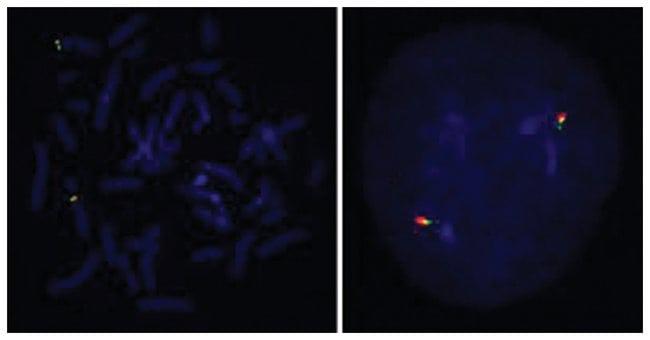 Abnova CCND2 (Texas Red/FITC) Split FISH Probe CCND2 Split FISH Probe:Life