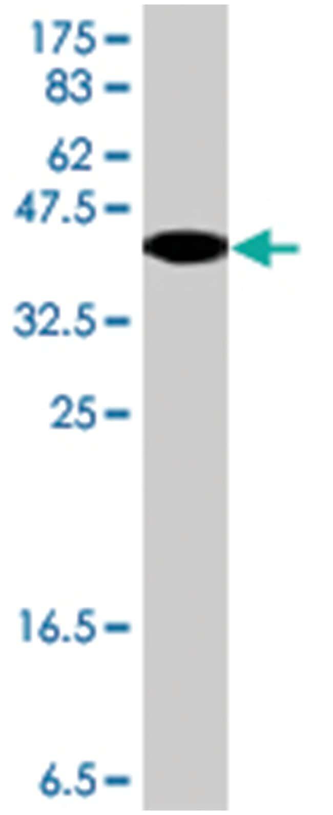 CBS, Mouse, Polyclonal Antibody, Abnova 50µL; Unlabeled